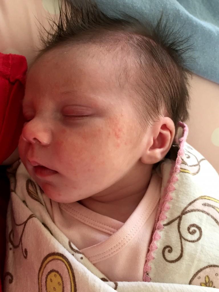 Baby Acne Week 1