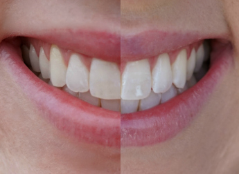 Smile Brilliant Teeth Whitening Mommy Status Collage